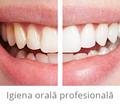 Igiena orala profesională