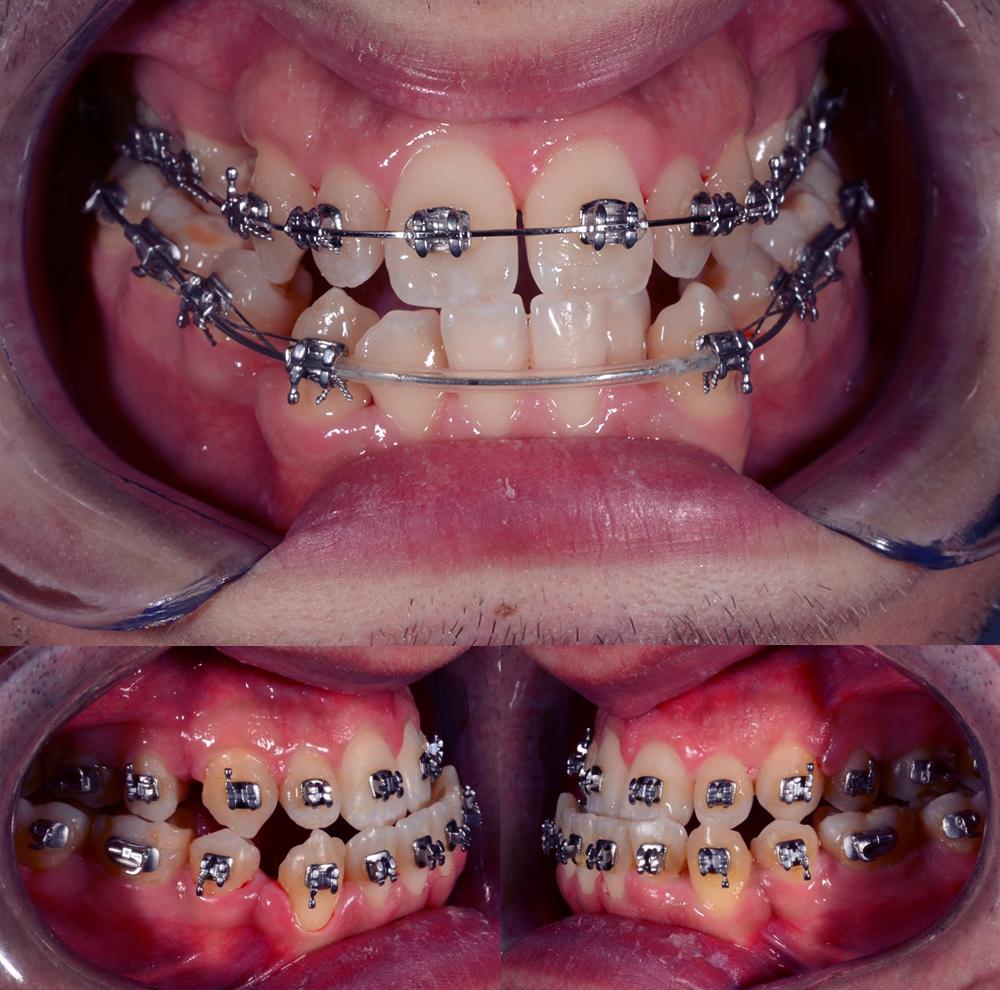 Aparat ortodontic fix