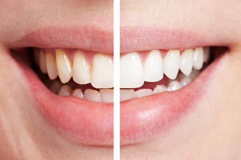 Igienă orală profesională