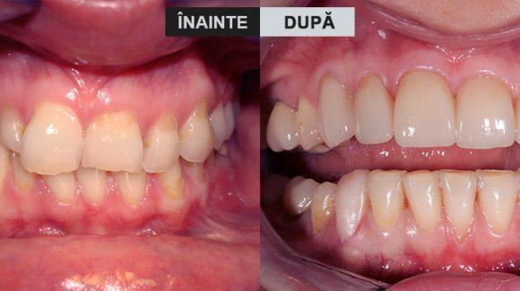 Ortodonție și reabilitare totală