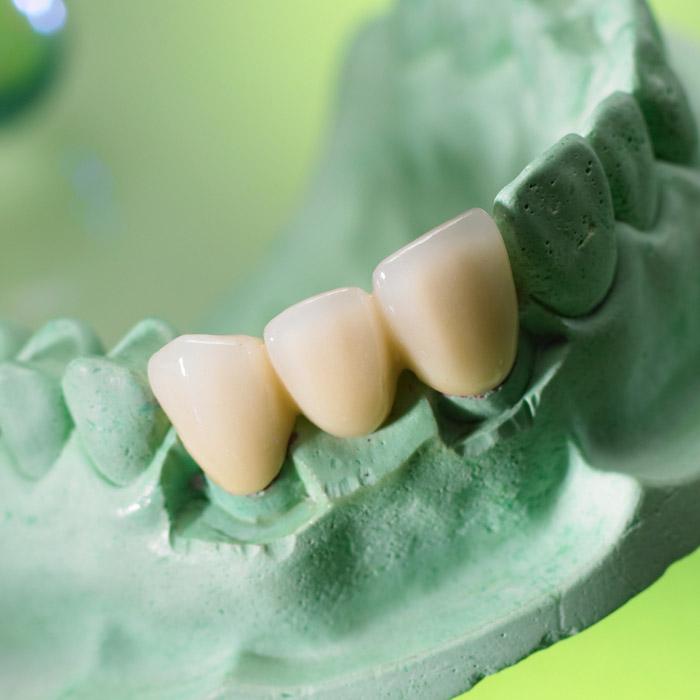 Puntea dentara
