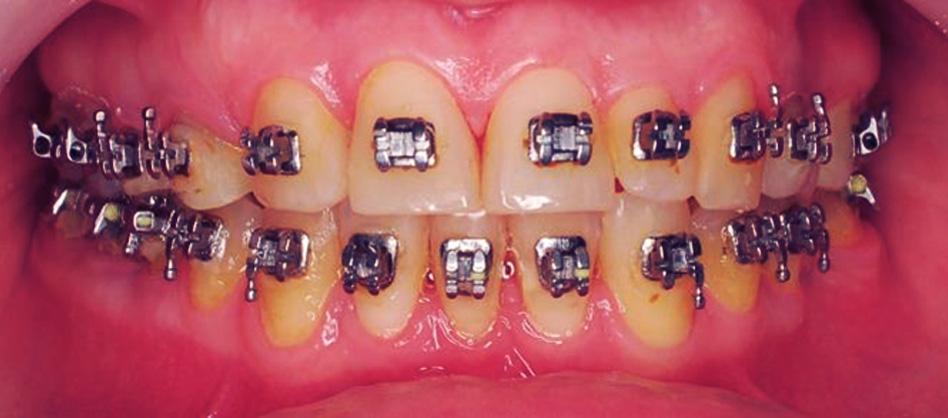 Intermediar - ortodonție