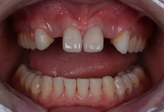 Temporary front upper frontal teeth and insertion of implants