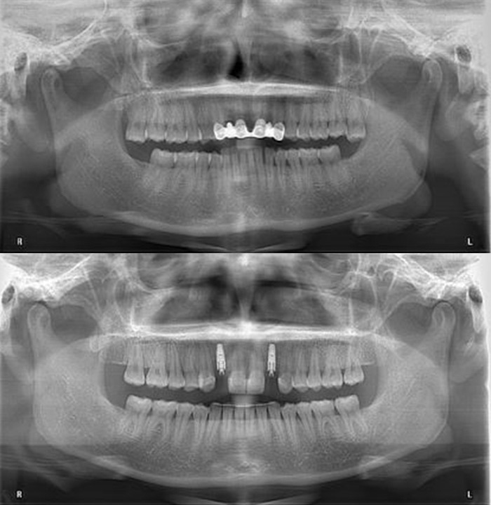 OPG – initial and post-orthodontic treatment and surgery