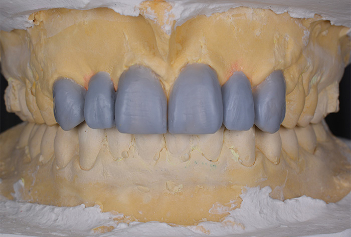Wax-up of frontal upper teeth