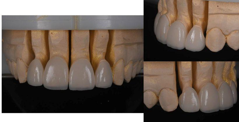 Final dental veneers on the model