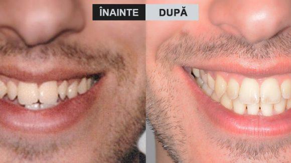 Ortodonție și chirurgie ortognată