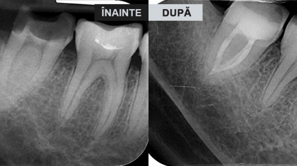 Endodonție