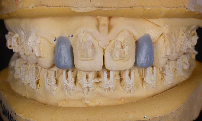 Sfârșitul tratamentului ortodontic și wax-up laterali superiori