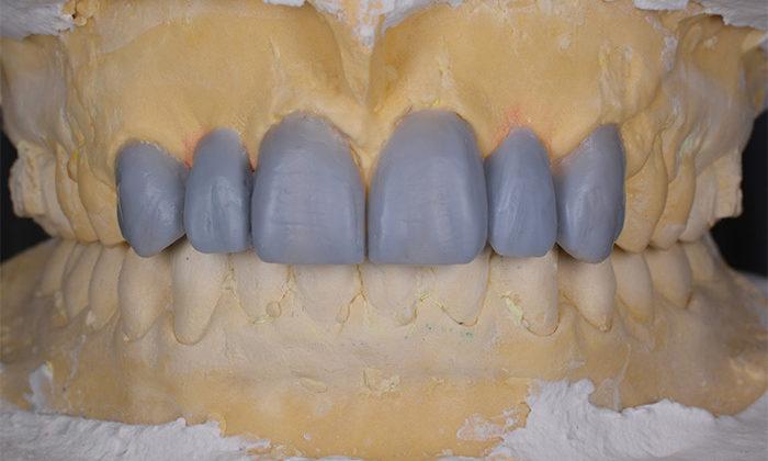 Wax-up of frontal upper teeth