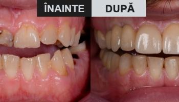 Reabilitare totală – fațete și coroane pe implanturi