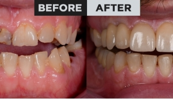 Total rehabilitation – veneers and crowns on implants