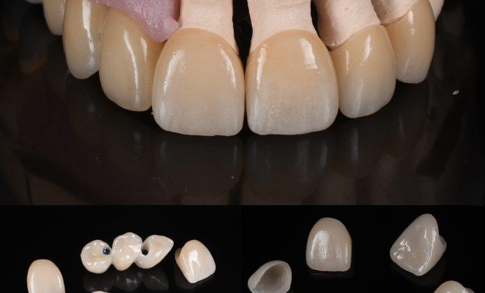 Lucrări protetice finale - fațete și coroane pe implanturi