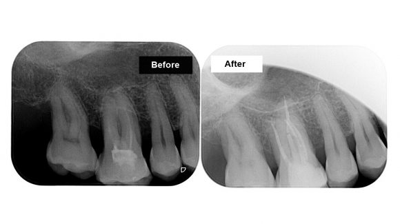 Tooth with an incomplete endo treatment requiring prosthetic rehabilitation