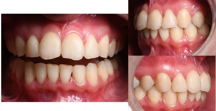 Final tratament ortodontic