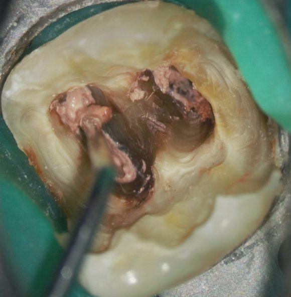 Aspectul vechiului material pentru obturația de canal la nivelul camerei pulpare-consistenta moale
