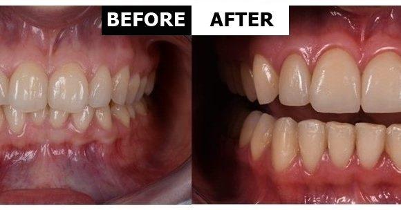 Orthodontic treatment and dental veneers