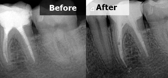 Retreatment 36 with fractured instrument on the mesial root