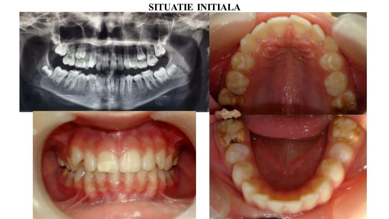 Pacienta se prezinta in clinica cu distructie avansata a tuturor celor 4 molari definitivi. Va prezentam cazul pacientei inceput la varsa de 9 ani si finalizat la varsta de 18 ani.