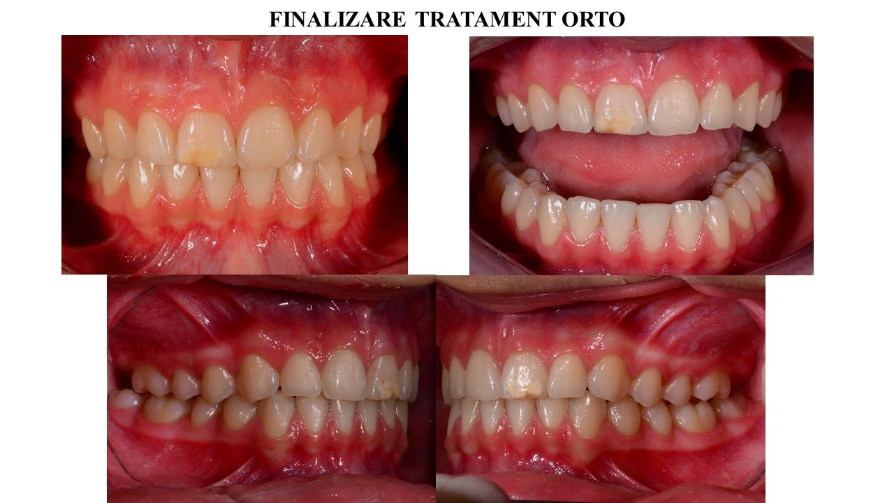 Datorita defectului de strcutura al smaltului de la nivelul incisivului central, pacienta a optat pentru fatetarea acestui dinte.