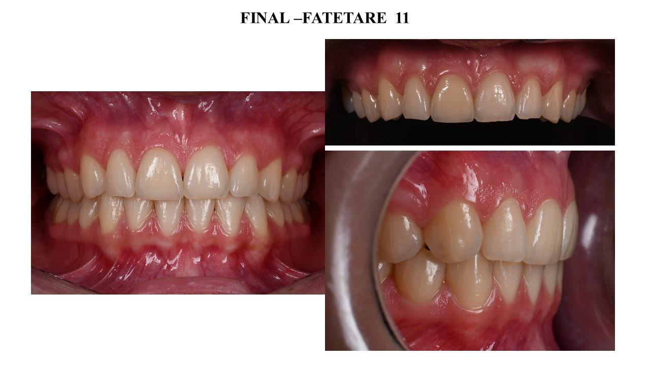 Final - Fatetare 11