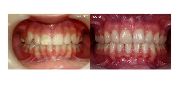 Tratament ortodontic si fatetare 11