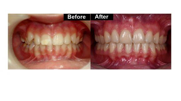 Orthodontic treatment and veneers 11